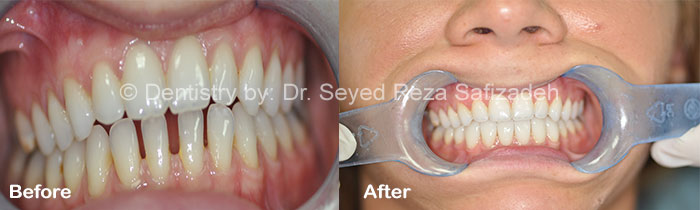 Before and After in Cosmetic Dentistry