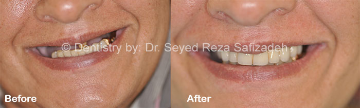 Before and After for Dental Implants