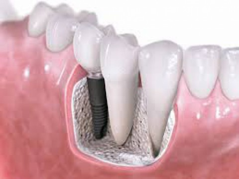 A New Quality Of Life With Dental Implant